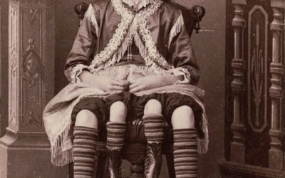 Circus Freaks: 20 Of The Most Famous Sideshow Performers
